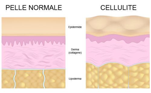 Persona e benessere  normale-vs-cellulite-schema-500x308 Cellulite: dalla natura i rimedi per contrastarla